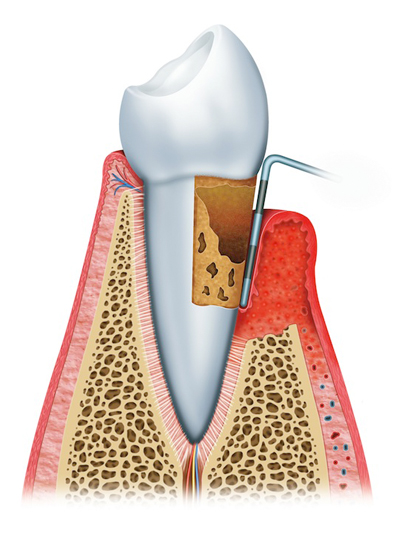 Stages of Gum Disease Vancouver & Burnaby, BC