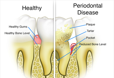 Gum Disease and Tooth and Bone Loss Vancouver & Burnaby, BC